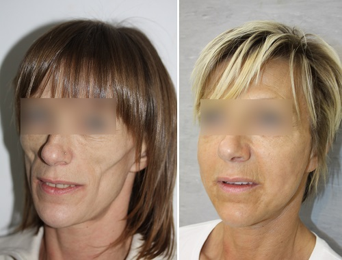 Correction of Bilateral Facial Atrophy by Adipofilling