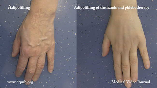 Adipofilling of the hands and Phlebotherapy.jpg