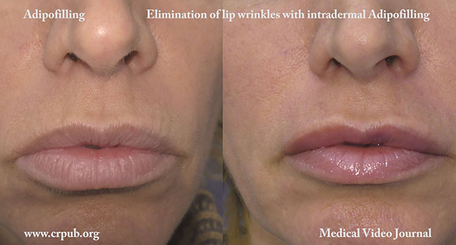 Elimination of wrinkles in the lips with Adipofilling