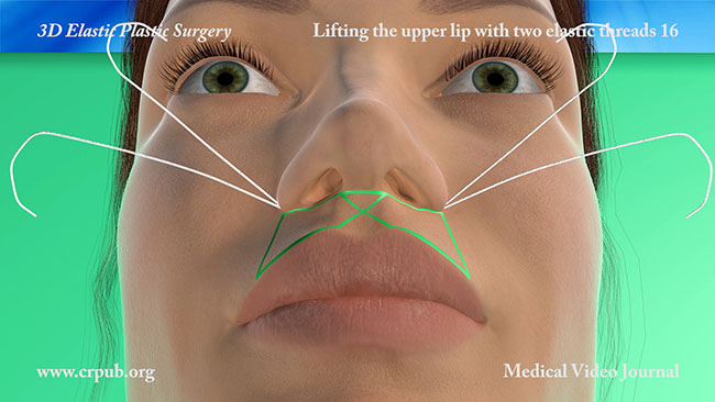 Lifting the upper lip with two elastic threads