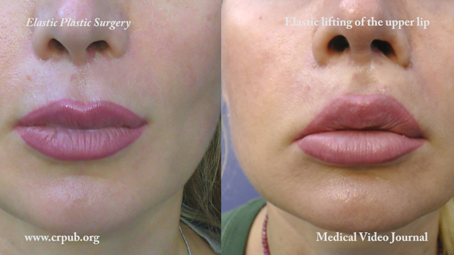 Elastic Lip lifting