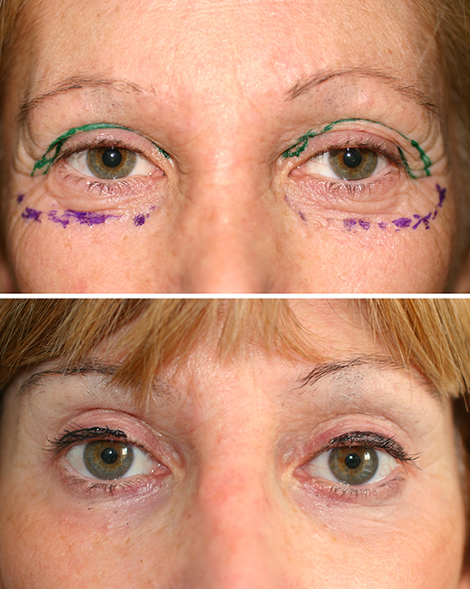 Mixed peeling of the lower eyelids