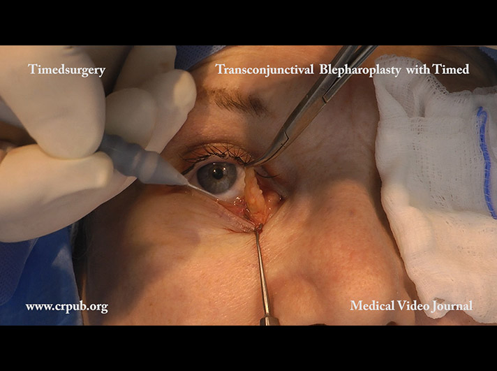 Transconjunctival blepharoplasty by means of rapid pulsed timedsurgical cutting