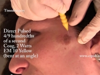 06. Removal of a Dermal-Epidermal Patch on the Face by Timedsurgical Mixed Peeling
