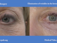 19. Eliminating wrinkles from the lower eyelids with Timedsurgical mixed peeling