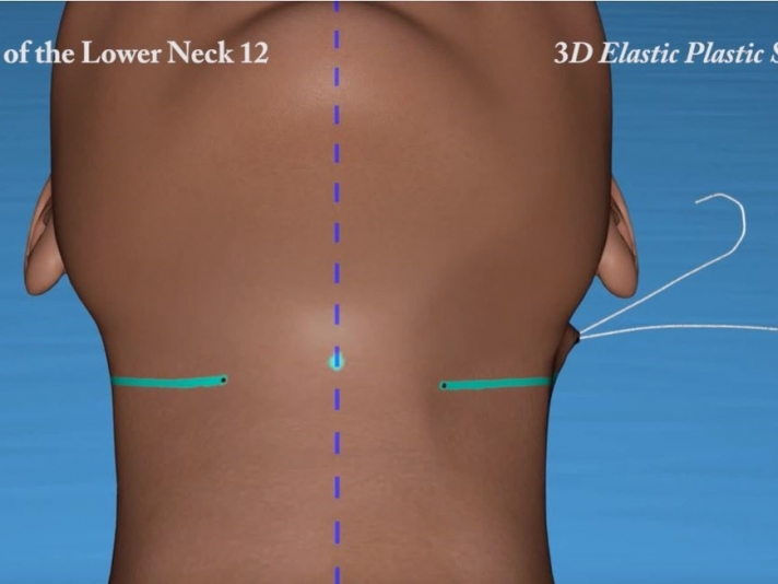 33. Elastic Lifting of the Lower Neck