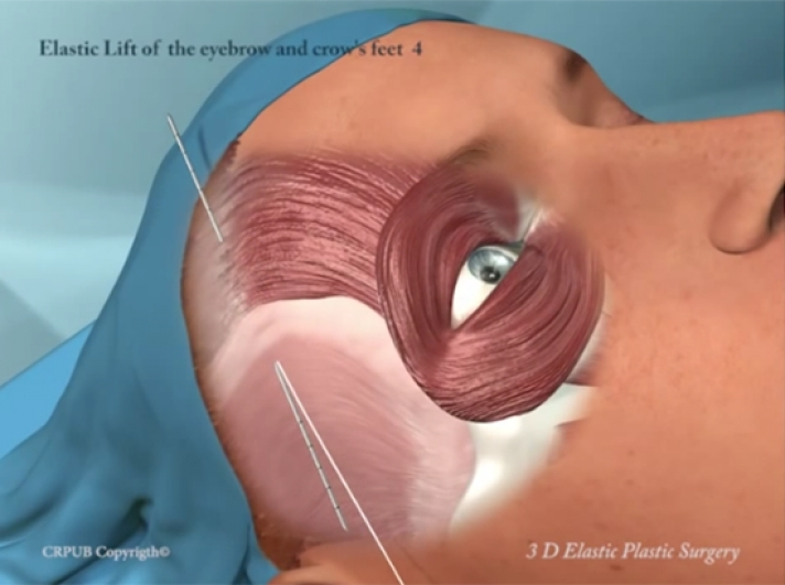 17. 3D Elastic Lift of the Eyebrow and Crow's Feet by Minimal Incisions