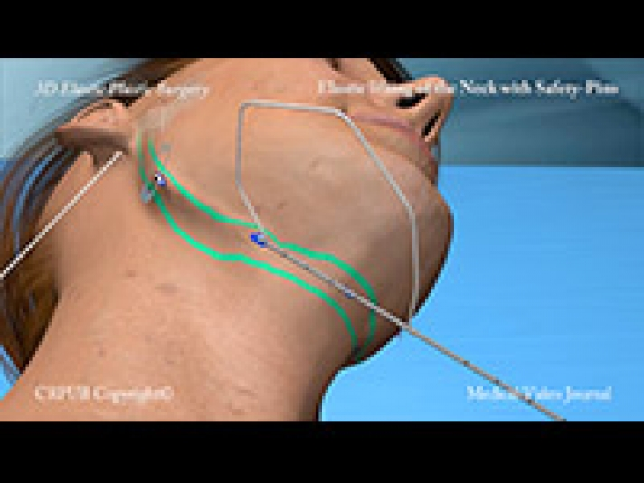 41. 3D Elastic lifting of the neck with safety-pins, without neck dissection and without skin removal