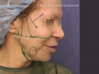 38. Basic Elastic MACS and Neck Lift without dissection of the cheeks and neck, step-by-step