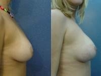 40. Conization of breasts that have silicone implants by means of the elastic thread and Jano needle