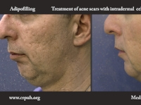 11. Treatment of acne scars with subcutaneous and intradermal Adipofilling