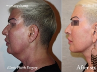 25. Liposuction and Implantation of Elastic Thread between the two Fasciae of Loré to treat a Double Chin