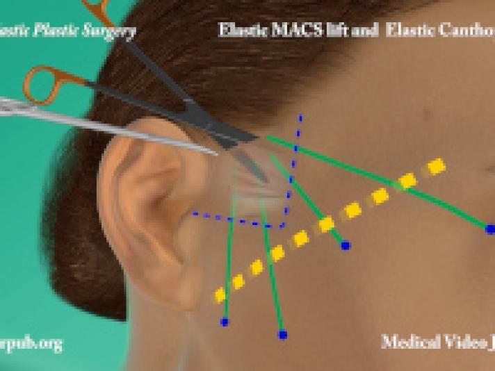 51. Elastic MACS lift and elastic Canthopexy