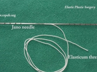 07. Correction of Facial Paralysis by Elastic Thread and Two-Tipped Needle