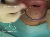 04. Skin-Scar Revision and Correction of Chin Ptosis by Elastic Thread and Two-Tipped Needle