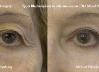 18. Upper blepharoplasty without skin incisions, by means of timedsurgical mixed peeling 0.5