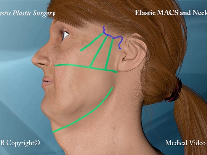 39. 3D Elastic MACS and Neck lift 14
