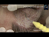 12. Upper blepharoplasty without skin incisions, by means of mixed peeling 0.5