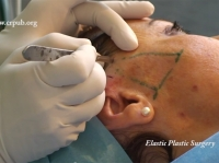 01. Elastic Face Lift of the Cheeks without Blunt Dissection