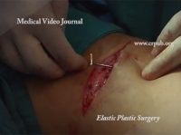 02. Revision of Scars on Thigh without a Blunt Dissection using Elastic Suture with a Two-Tipped Atraumatic Needle