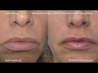 10. Eliminating lip wrinkles with intradermal cellular Adipofilling