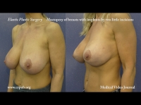 42. Conization and mastopexy of breasts with silicone implants by means of two incisions of a few millimeters and the Elasticum thread and Jano Needle