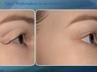 16. 3D Non-surgical upper blepharoplasty in only one session of 0.5 timedsurgical mixed peeling