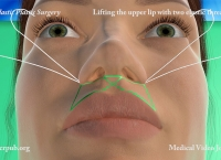 45. Lifting the upper lip with two elastic threads