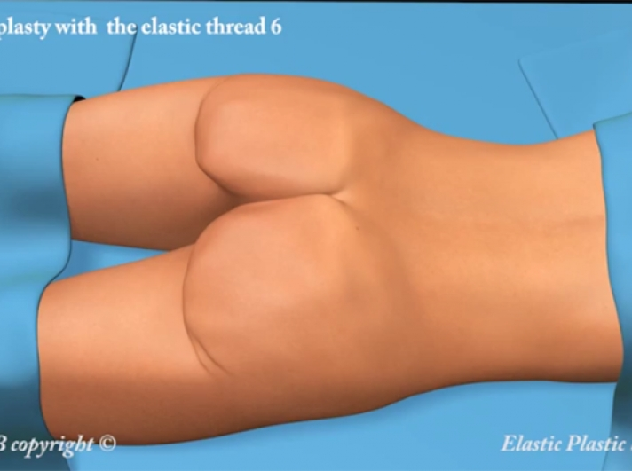20. Buttocks Lift (Gluteoplasty) with Elastic Thread and Two Incisions of 5 MM