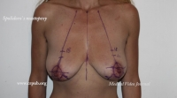 04. Vertical Spolidoro's Mastopexy - Mastopexy with Threads