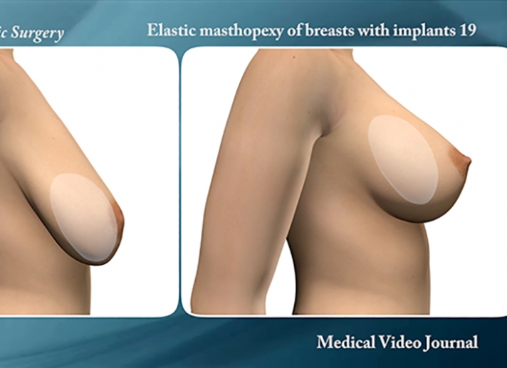 48. Mastopexy of drooping breasts with silicone implants, by means of two tiny incisions and elastic threads