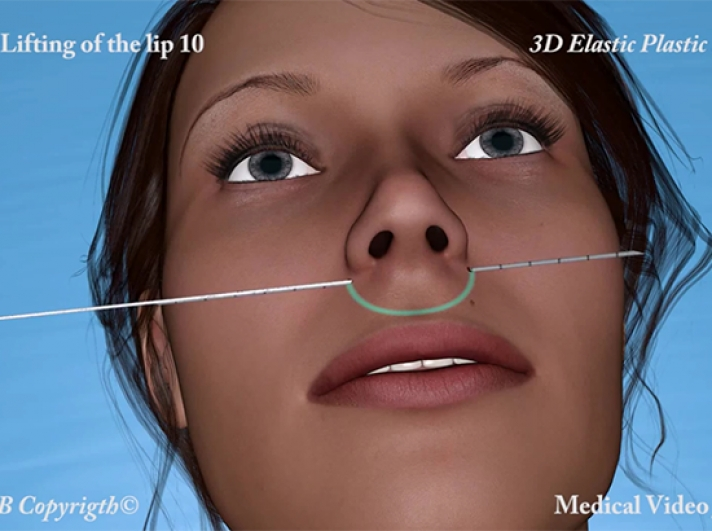 29. 3D Elastic Lifting of the Upper Lip