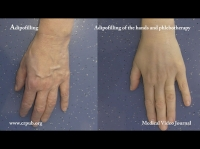 09. Rejuvenating the hands: Phlebotherapy and Adipofilling with feeding