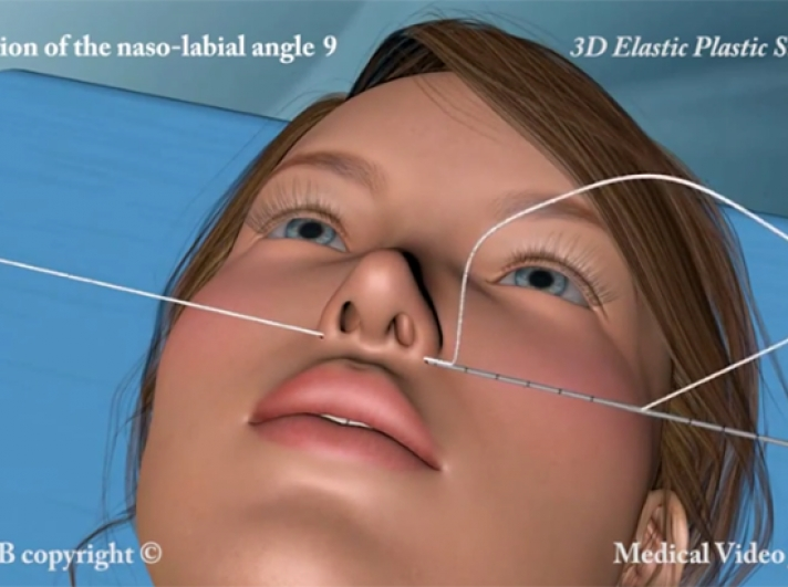 26. 3D Correction of naso labial angle with elastic thread