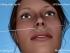 29. 3D Elastic Lifting of the upper lip